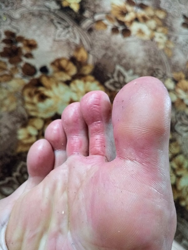 Ноги после неудачного похода